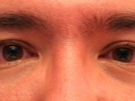 salud de los ojos
