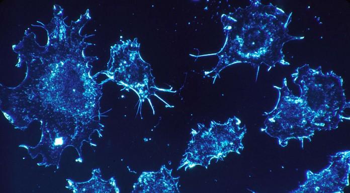 8 señales que pueden ser síntomas de algún cáncer