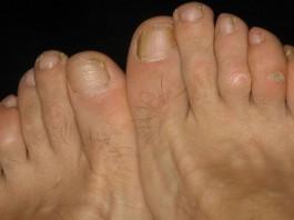 10 remedios caseros para los callos de los pies