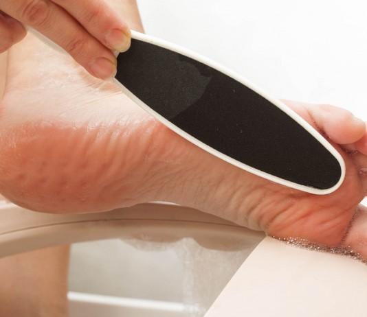 10 remedios caseros para los callos de los pies (III)