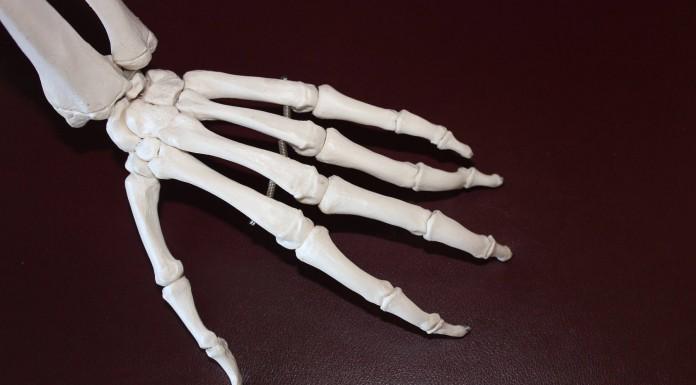 6 remedios naturales para reducir el dolor y la inflamación articular