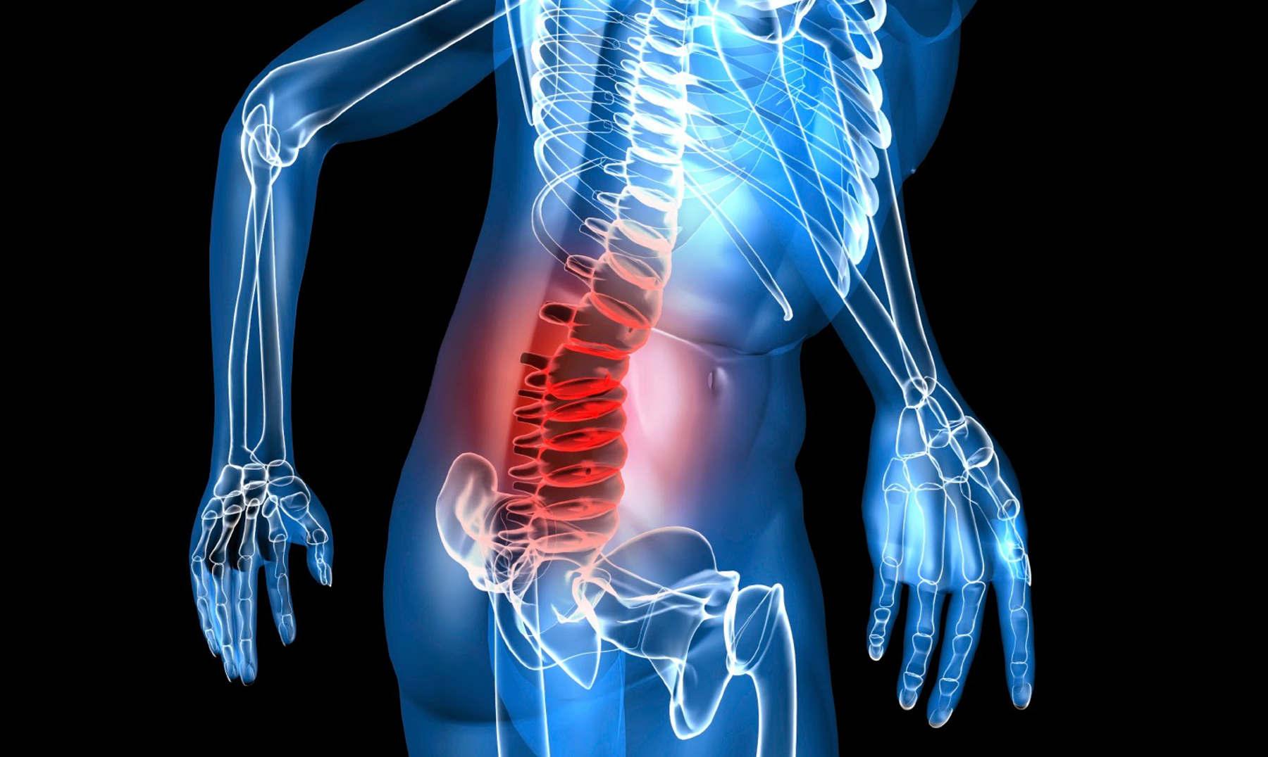 8 maneras naturales de reducir el dolor de huesos y..