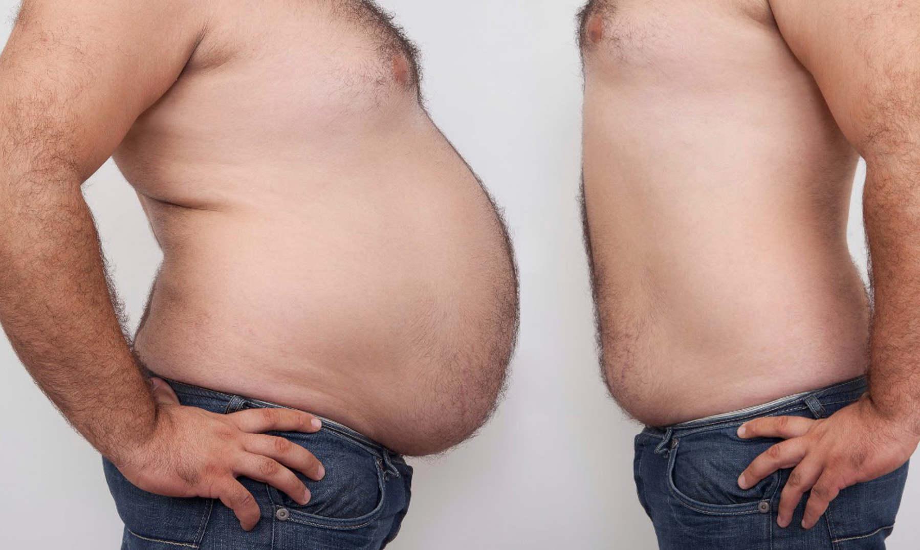 Tratamiento para bajar de peso con hipotiroidismo