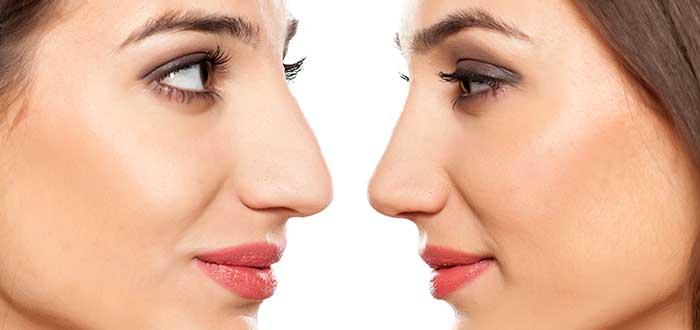 Rinomodelación y rinoplastia: elige la técnica para mejorar tu nariz 1