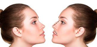 Rinomodelación y rinoplastia: elige la técnica para mejorar tu nariz