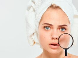 Cuáles son las principales recomendaciones para eliminar el acné facial