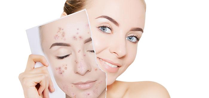 Cuáles son las principales recomendaciones para eliminar el acné facial 2